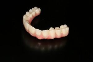 IMG_2097  Implantat Prothese auf ICX Implantat IMG 2097