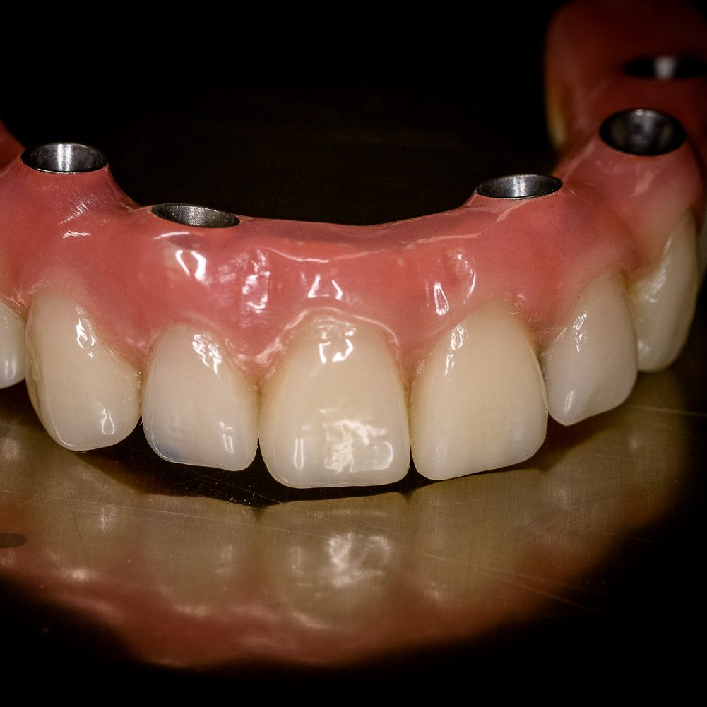 Implantat Prothese auf ICX Implantat