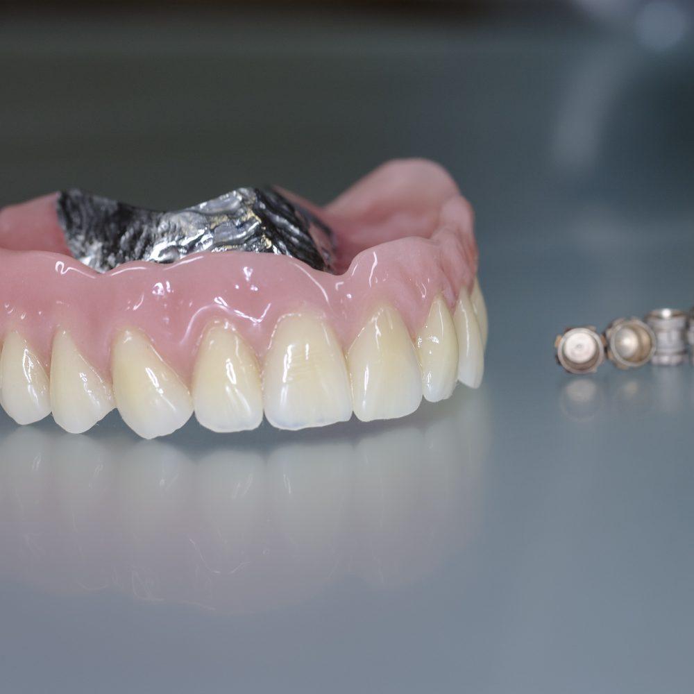 Implantat Prothese auf 6 Syncon