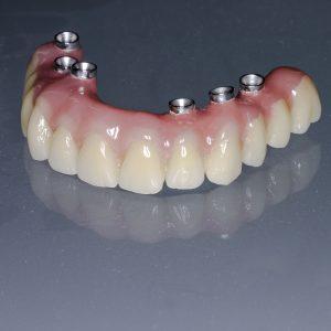 20160927_implprothese-4  Implantat Prothese 20160927 implprothese 4