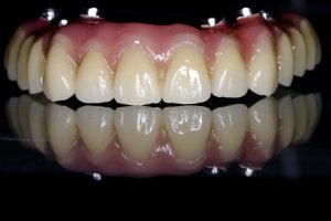 20160927_implprothese-5  Implantat Prothese 20160927 implprothese 5