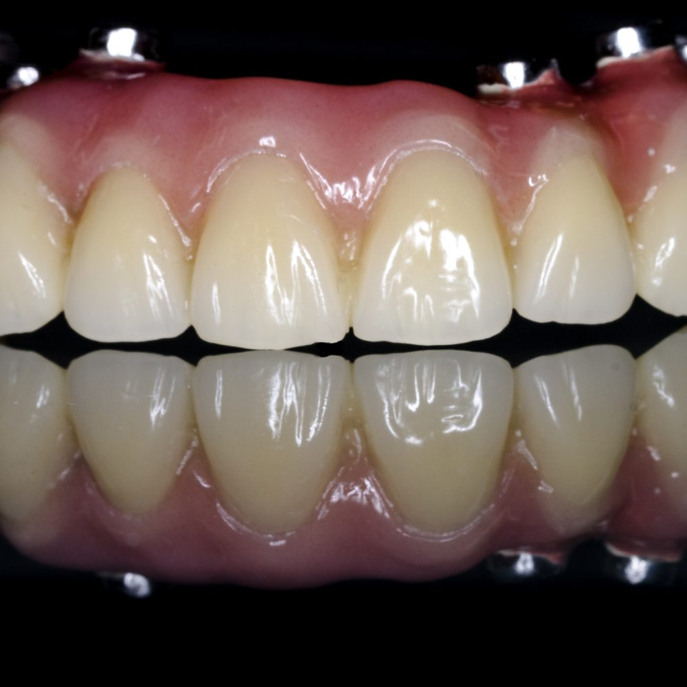 Implantat Prothese
