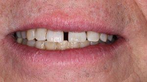 emax implantat krone IMG 7238